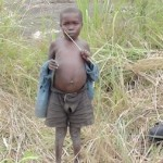 Malnourished child standing